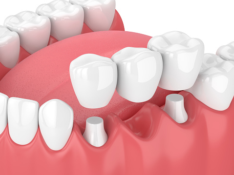 Fixed dental bridges and implants at Southington Family Dentistry