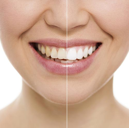 Teeth whitening treatment at Southington Family Dentistry